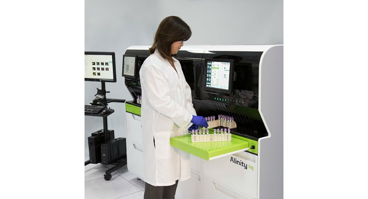 The Alinity h-series of systems integrates hematology workflow, from high-throughput Complete Blood Count (CBC) analysis to automated slide making and staining. Image courtesy of Abbott.