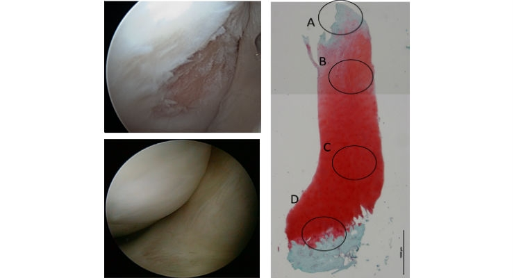 Cartilage repair by the TEC (Phase I/II trial). Top left: before implantation; Bottom left: 1yr post surgery; Right: Histology. All images courtesy of Osaka University.