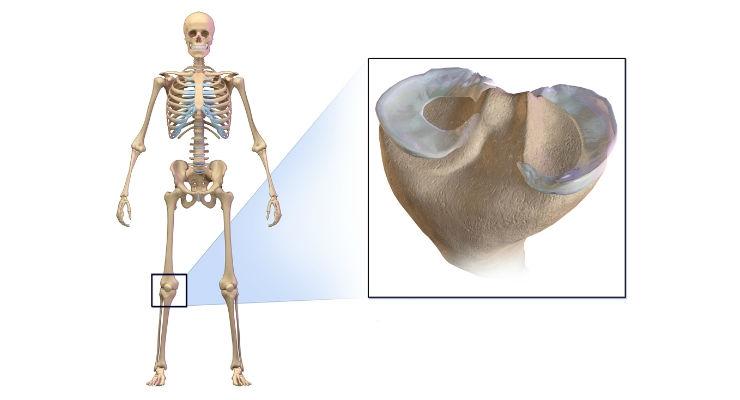 Ceterix Orthopaedics Wins New Patent for Meniscus Repair Circumferential Suturing