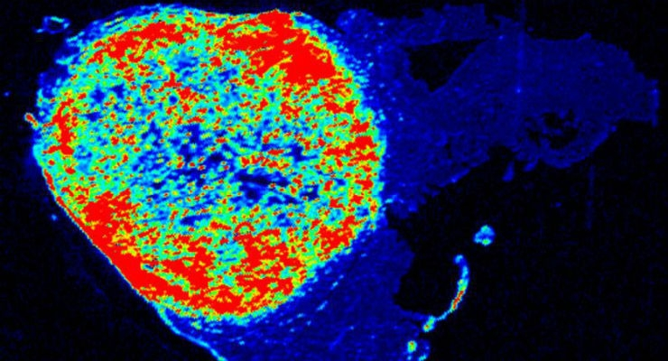 Digital Nanosensor that Lights Up Cancer to Be Tested in Surgeries