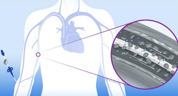 FDA Clears Access Vascular