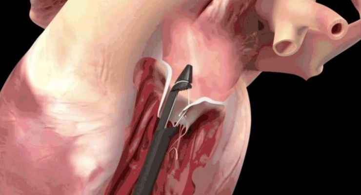 Trial Tests Catheter-Based Approach to Mitral Valve Repair