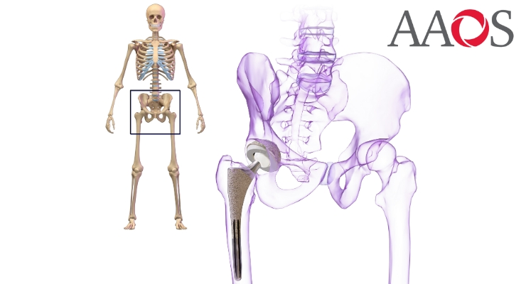 Dual-mobility hip components provide an additional bearing surface.