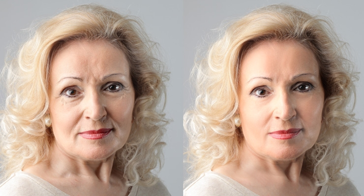 Before & After. Dermatologists offered a list of exciting new anti-aging ingredients to consider.