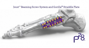 Paragon 28 Unveils Joust Beaming Screw System for Charcot Foot Deformity