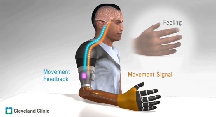 Researchers Restore Movement Sensation for Upper Limb Amputees