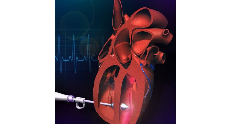 An illustration of the specialized catheter device that can repair holes in the heart, or tissue defects in other organs, using deployable soft structures. Image courtesy of Ellen Roche.