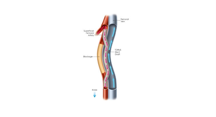 First Patient Treated in PQ Bypass DETOUR II Trial Evaluating New Treatment for Clogged Leg Arteries