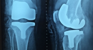 The Ins and Outs of TKA Reimbursement