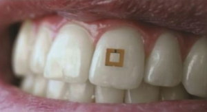 Tiny Tooth-Mounted Sensors Can Track What You Eat