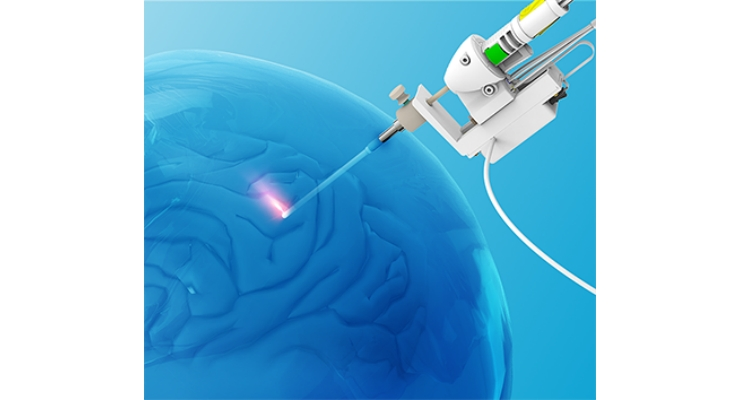 Monteris Medical NeuroBlate System Recalled Over Unexpected Laser Delivery Probe Heating
