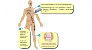 Pilot Trial to Evaluate First Bioelectronic Device to Treat Rheumatoid Arthritis