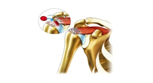 Ortho RTi Reveals Compelling Data from Ortho-R Pilot Rotator Cuff Repair Study