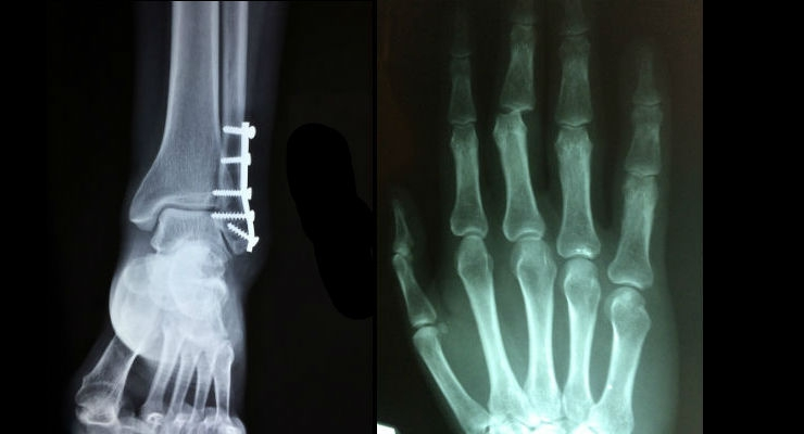Minor Orthopedic Replacement Implants Global Market Exceeds $1.5 Billion