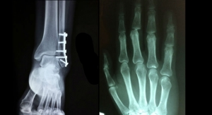 Minor Orthopedic Replacement Implants Global Market Exceeds $1.5 Billion
