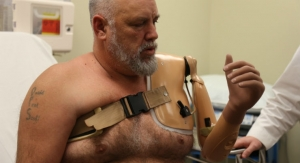 Arkansas Man Fitted for Robotic Arm Controlled by Thought