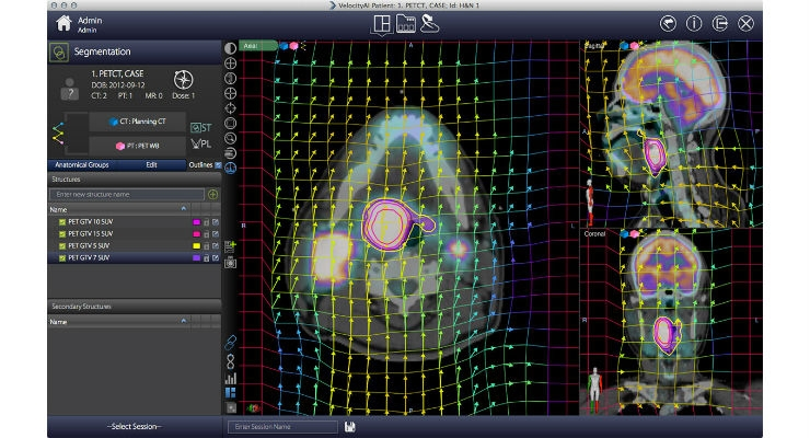 Velocity oncology imaging informatics system is a vendor neutral software solution that seamlessly collects and integrates oncology data including medical imaging, treatment, and metadata into a comprehensive longitudinal view of the cancer patient. Image courtesy of Varian.