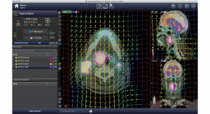 Varian Launches Cancer Imaging Software with Selective Internal Radiation Therapy Dosimetry Analysis