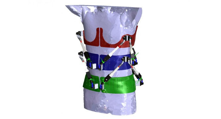 First Dynamic Spine Brace—Robotic Spine Exoskeleton—Characterizes Spine Deformities