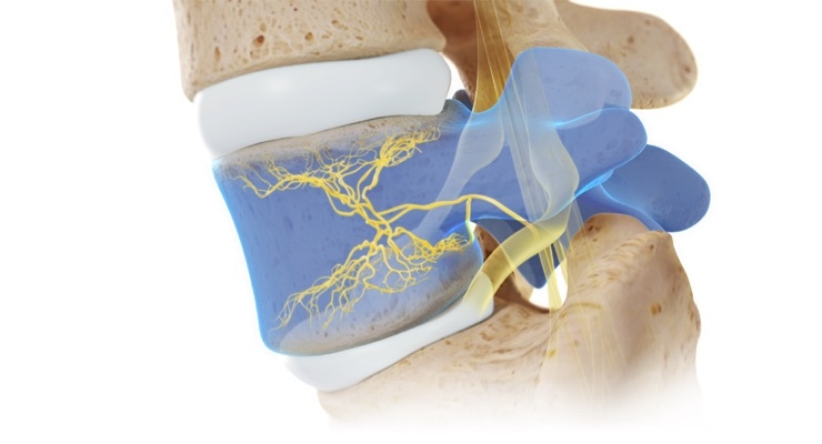 Relievant Medsystems has developed the Intracept Procedure, a minimally invasive procedure targeting the basivertebral nerve for the relief of chronic low back pain. Image courtesy of Relievant Medsystems.