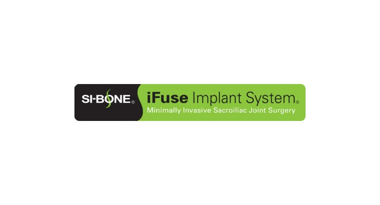 SI-BONE Publishes 3-Year Post-SI Joint Fusion Data for Triangular iFuse Implant System