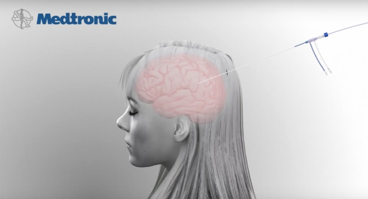 Medtronic Launches MRI-Guided Laser Ablation System for Brain Surgery in Europe