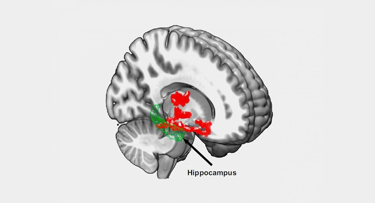 Brain imaging after one night of sleep deprivation revealed beta-amyloid accumulation in the hippocampus and thalamus, regions affected by Alzheimer's disease.