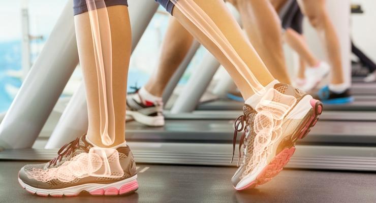 Probi Probiotics Show Benefits for Bone Health