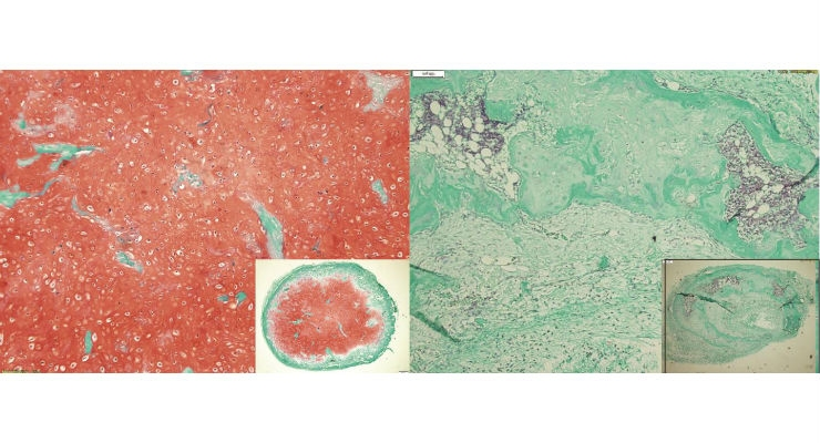 Development of cartilage tissue from mesenchymal stem/stromal cells after eight weeks in vivo: Inhibition of the signaling pathway of the protein BMP leads to the maintenance of stable cartilage tissue, indicated by red staining (left). In contrast, the control group shows a development towards bone tissue (right). Image courtesy of University of Basel, Department of Biomedicine.