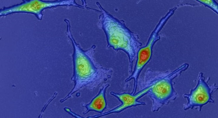 Microscopy Platform Measures Tumors