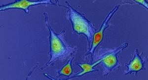 Microscopy Platform Measures Tumors