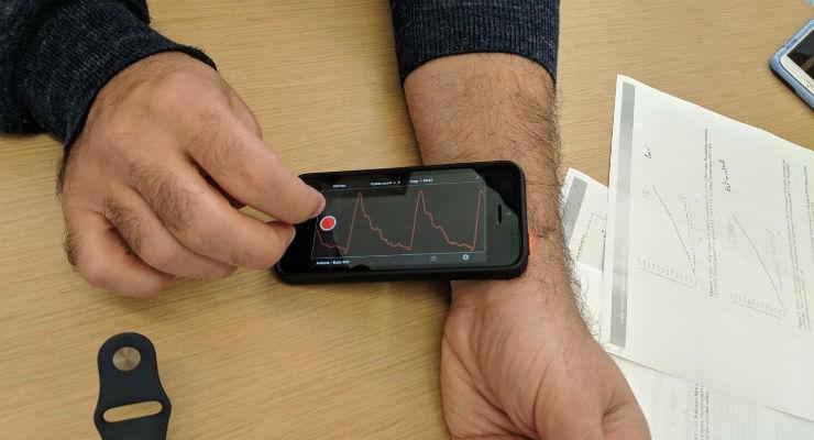 Using AI to Detect Arterial Stiffness