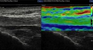 Samsung Unveils New Ultrasound System