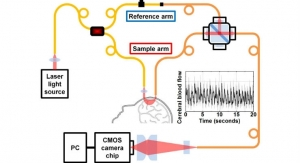 New Tech Measures Brain