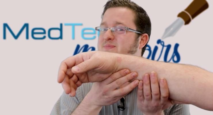 MedTech Memoirs: Artificial Limbs