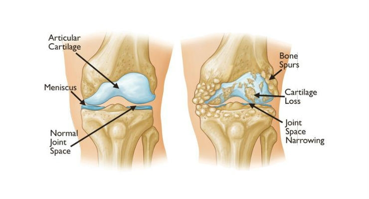 New Research Ranks the Effectiveness of Nonsurgical Treatments for Knee Osteoarthritis