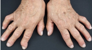 U.S. Pilot Trial to Evaluate First Bioelectronic Device to Treat Rheumatoid Arthritis