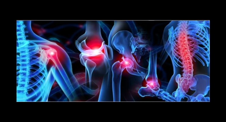 Orthopedic Trauma Devices Market Expected to Account for $14 Billion by 2028