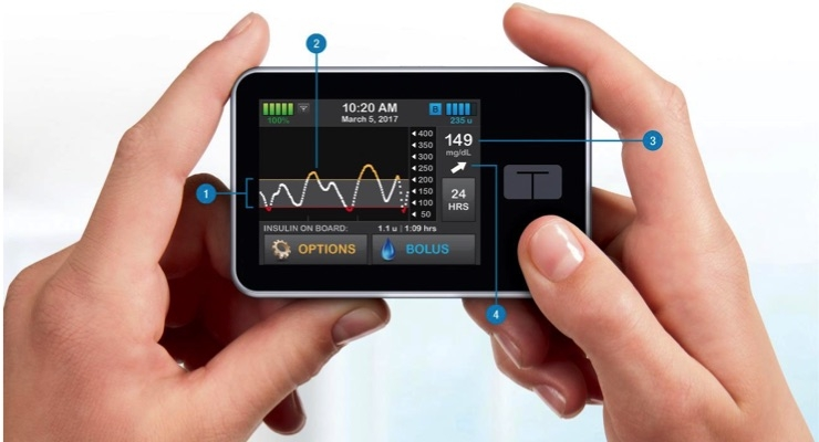 Tandem Diabetes Care, Movi SpA Announce Agreement for Distribution of Insulin Pump Products