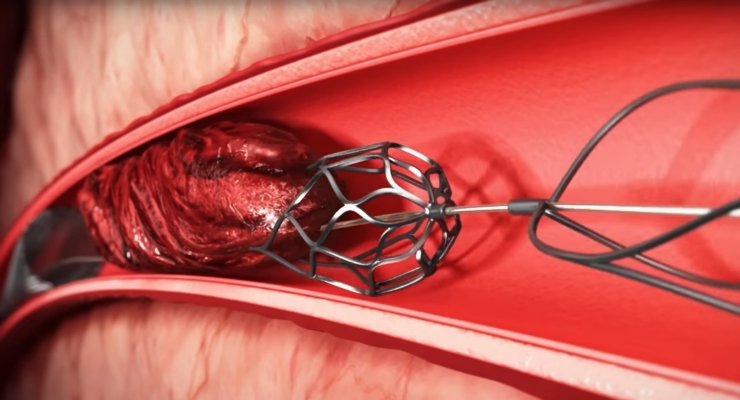 The Embolitech technology platform is designed to remove difficult, organized (hard) blood clots. Image courtesy of Embolitech.