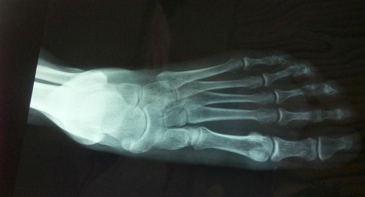 FDA Clears Additive Orthopaedics