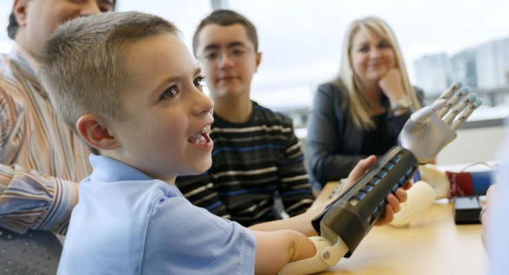 First U.S. Clinical Trial of 3D Printed Bionic Arms for Children Begins