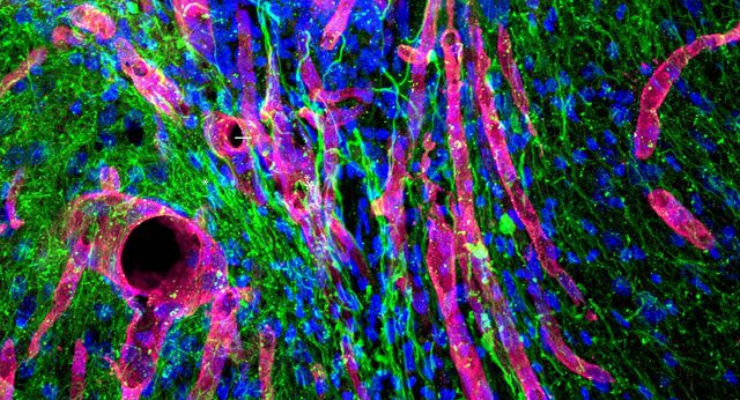 Biomaterial Could Help Regrow Brain Tissue After Stroke