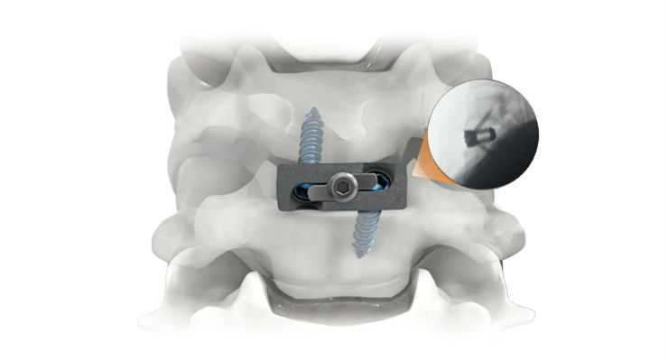 The Pro-Link Stand-Alone cervical spacers are designed with a large, open graft area for maximum bone graft capacity. Image courtesy of Life Spine.