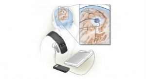 Self-Tuning Brain Implant Could Help Treat Parkinson