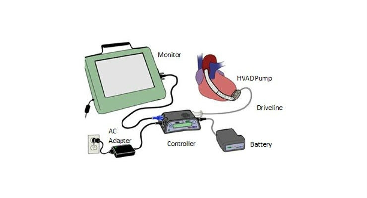 Medtronic Recalls HeartWare HVAD System Over Electrical Issue