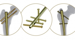 DePuy Synthes Launches Nailing System Aimed at Improving Treatment of Femoral Shaft Fractures