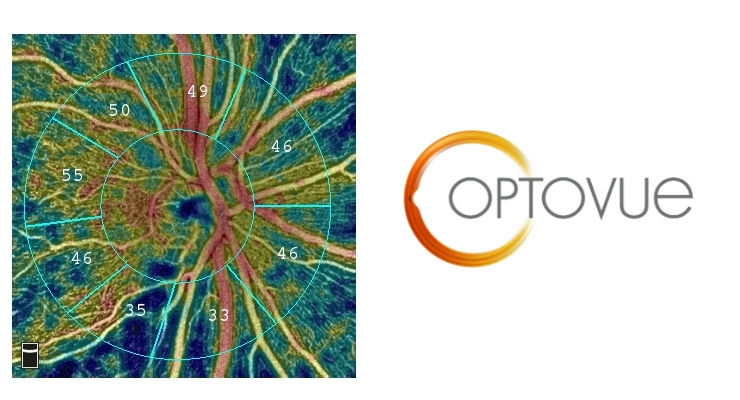 Vessel density of the optic disc displays loss of the retinal nerve fiber layer in a patient diagnosed with glaucoma. Image courtesy of Business Wire.