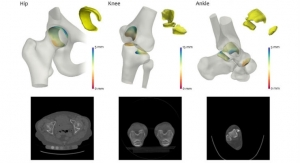 Semi-Automated 3D Imaging Analysis Technique Could Improve Arthritis Treatment