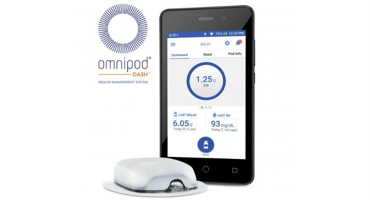 Insulet Assumes Direct Operations of its Omnipod Line in Europe
